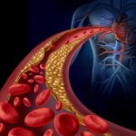 artere-cholesterol